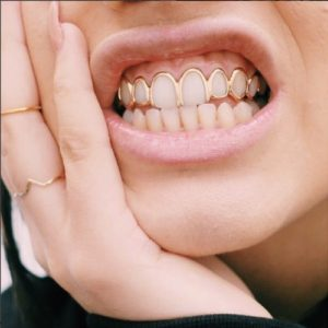 gold grillz dc