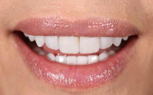 Female smile transformation - The Practice | Image Design