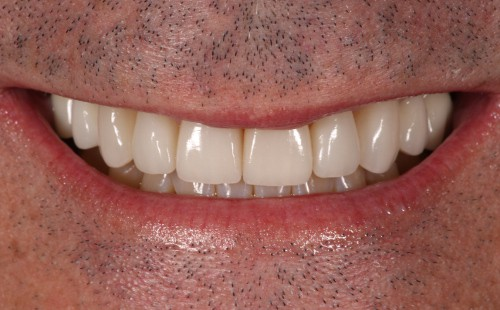 Male smile transformation - The Practice | Image Design